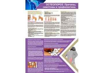 Санбюллетень ОСТЕОПОРОЗ. Причины, симптомы и профилактика PDF
