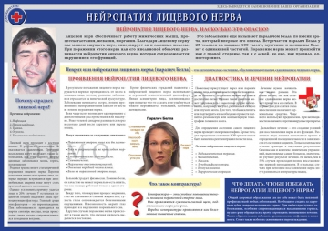 Санбюллетень Нейропатия лицевого нерва