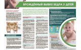Санбюллетень Врождённый вывих бедра у детей PDF
