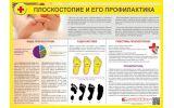 Санбюллетень Плоскостопие и его профилактика