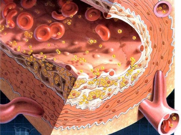 приводит высокий холестерин